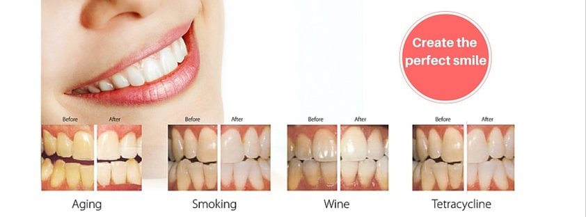 Teeth Cleaning in Edmonton